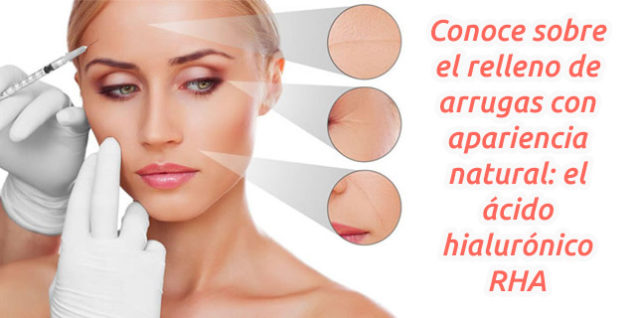 Relleno de arrugas con apariencia natural: el ácido hialurónico RHA