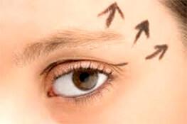 Cilioplastia (procedimiento de elevación de cejas) en Pereira, Colombia