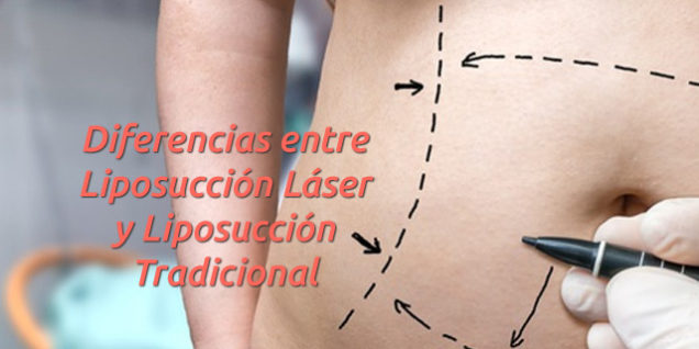 Diferencias entre Liposucción Láser y Liposucción Tradicional
