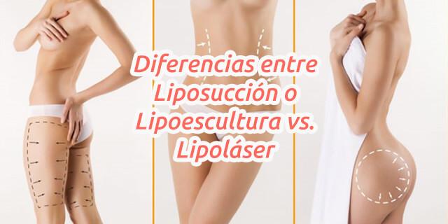 Diferencias entre Liposucción o Lipoescultura vs Lipoláser