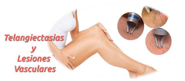 Telangiectasias y lesiones vasculares, causas y tratamiento.